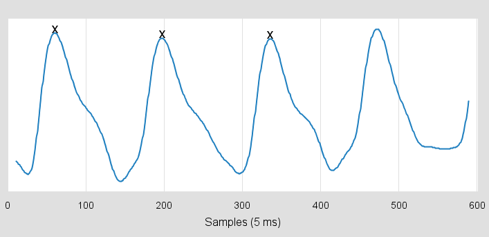 Arduino computes heart beat rate by detecting three consecutive peaks in the pulse signal